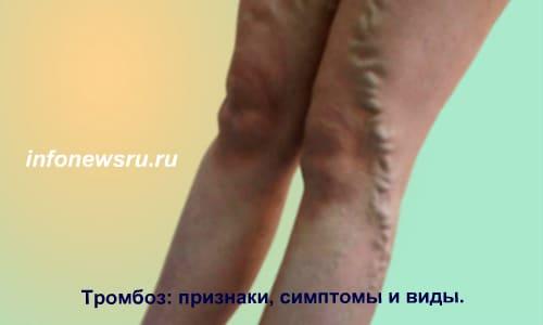 Тромбофебит, тромбоз-симптомы, признаки и виды.