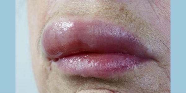 опухшие губы