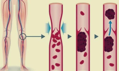 Сгустки крови, тромбоз