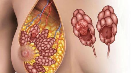 Рак молочной железы.