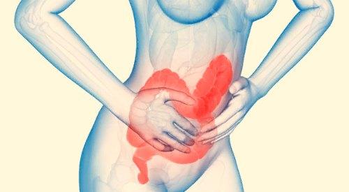 Синдром раздраженного кишечника – причины и лечение СРК, препараты, диета, профилактика