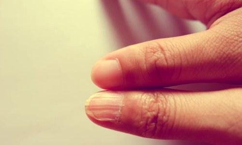 Симптомы, признаки дефицита железа по ногтям.